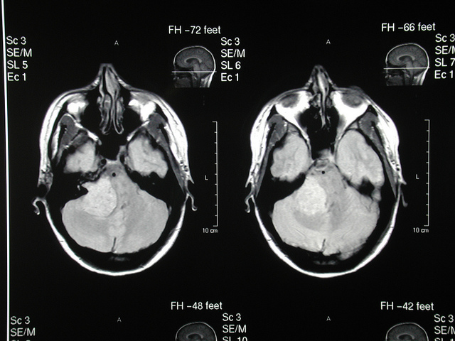 image of a brain tumour